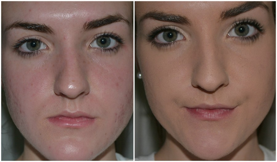 Autumn Boekeloo displays the differences in her face with and without makeup.